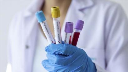 Количество подтвержденных случаев коронавируса в Армении достигло 937