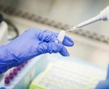 Կորոնավիրուսի վարակման 28 նոր դեպք է գրանցվել. հաստատված դեպքերի թիվը հասավ 921-ի