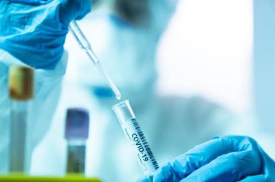 Հայաստանում կորոնավիրուսով վարակվածների թիվն ավելացել է 102–ով