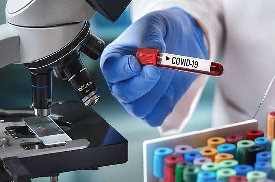 Ermenistan Cumhuriyeti'nde 142 kişi koronavirüse yakalandı