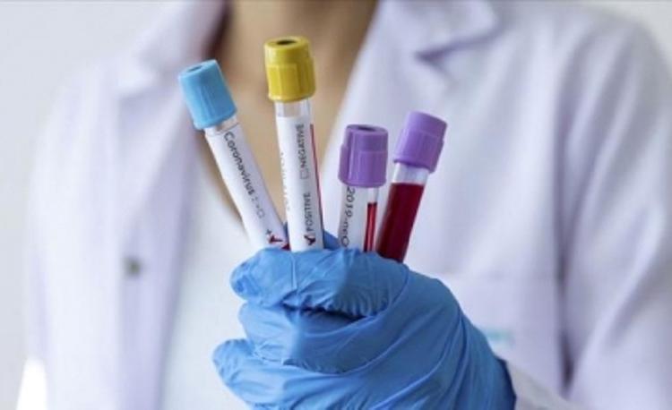 В Армении подтверждено 442 новых случая коронавирусной инфекции и 15 новых случаев смерти