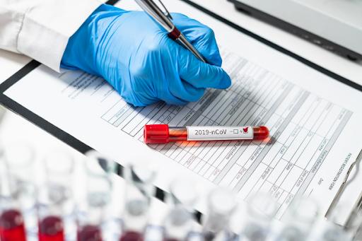 Ermenistan Cumhuriyeti'nde 322 kişi koronavirüse yakalandı