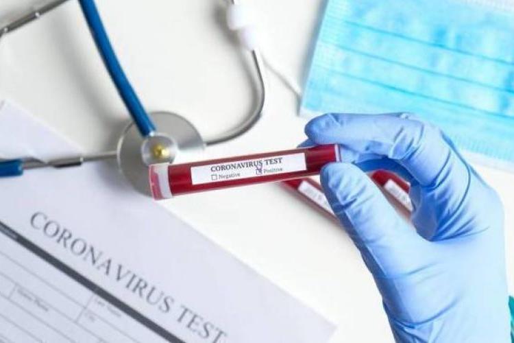 Количество людей, зараженных коронавирусом в РА превысило 10 тысяч. 517 новых случаев за день